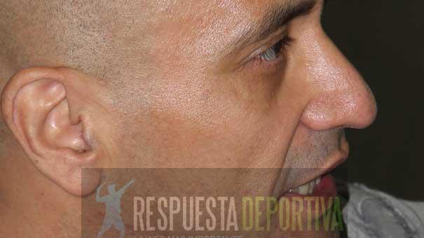 JORGE MOYA EN EL DEPORTIVO CHAPULTEPEC