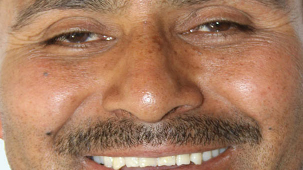 CASABLANCA: JACOBO MIRANDA SE RECUPERA